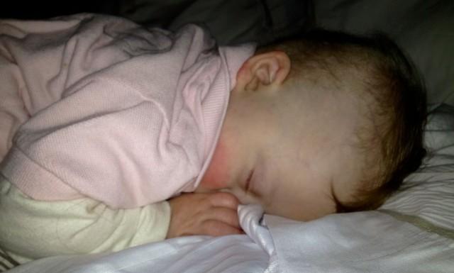 baby down syndrome sleeping sucking thumb