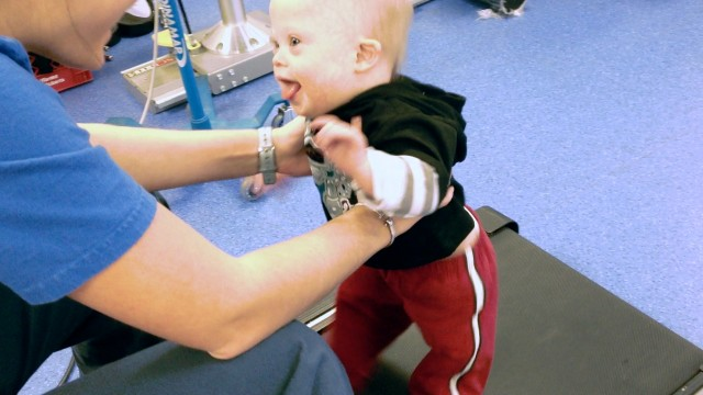 baby treadmill therapy down syndrome