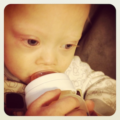 baby down syndrome holding bottle cute sleepy