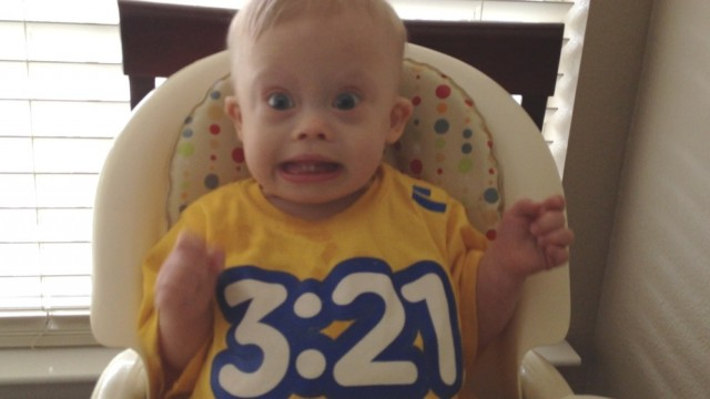 baby down syndrome infant prognosis treatment
