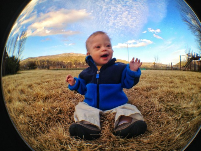 baby-down-syndrome-special-needs-fish-eye-lens 2