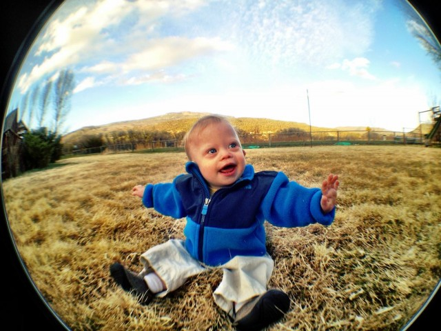 baby-down-syndrome-special-needs-fish-eye-lens 4