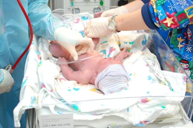our new born son with down syndrome in the delivery room