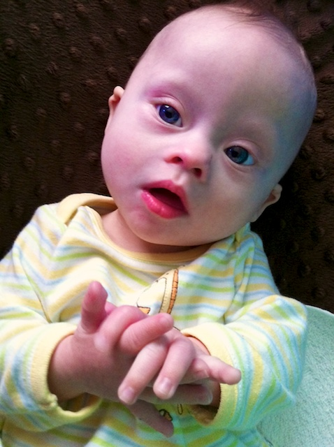 Down syndrome baby girl newborn