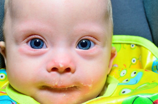 Our son born down syndrome eating baby food.