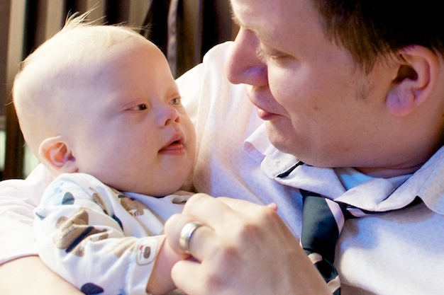 father and son picture baby with down downs syndrome