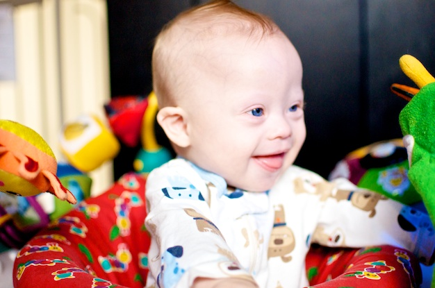 down downs syndrome baby picture pictures playing smiling laughing