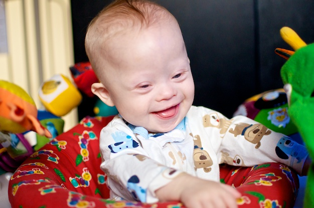 down downs syndrome baby picture pictures smiling playing laughing