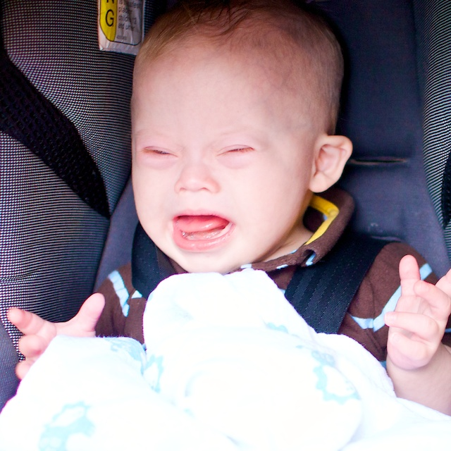 mad baby with down syndrome cute baby boy