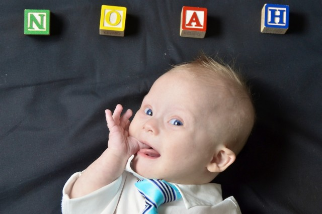 cute downs down syndrome sindrome boy blue eyes
