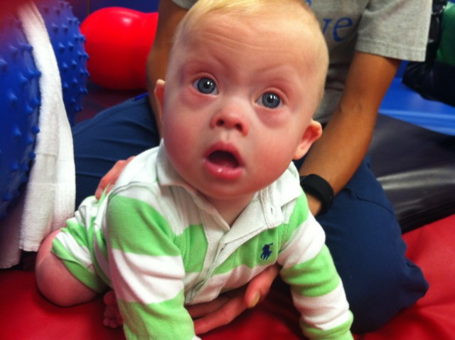 baby with down syndrome at physical therapy