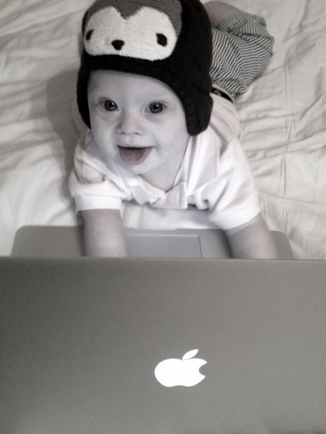 Baby born with Down syndrome special needs using macbook air