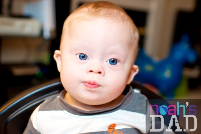 cute down syndrome boy blue eyes