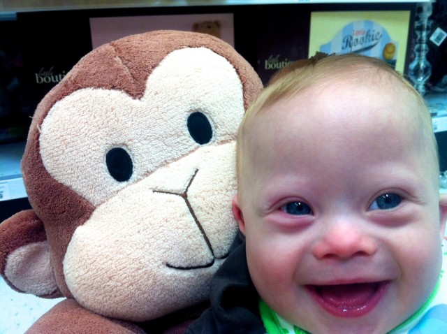 baby with down syndrome smiling with monkey