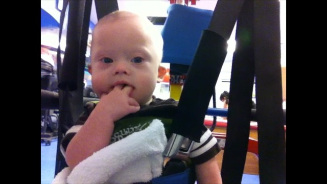 Free Download: Procedures To Use The Treadmill Training In Infants With Down Syndrome