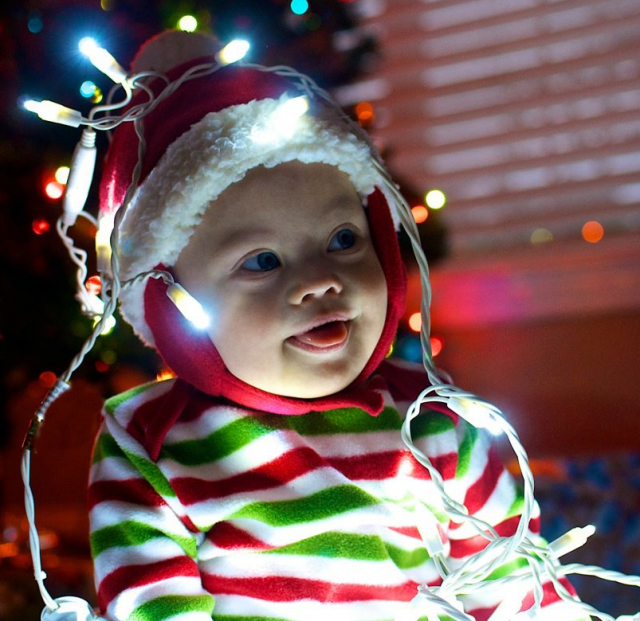 baby down syndrome future bright christmas cute