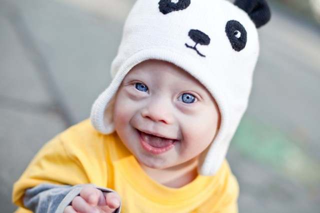 cute down syndrome baby