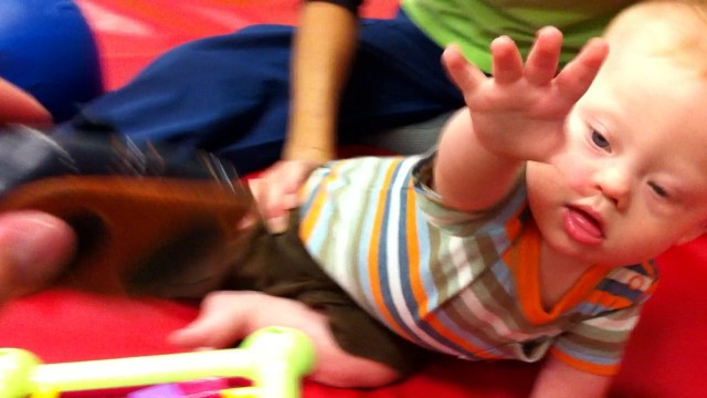baby with down syndrome reaching out therapy