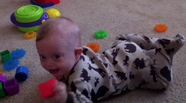 parenting baby down syndrome downs