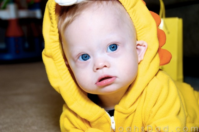 almond eyes blue down syndrome baby child
