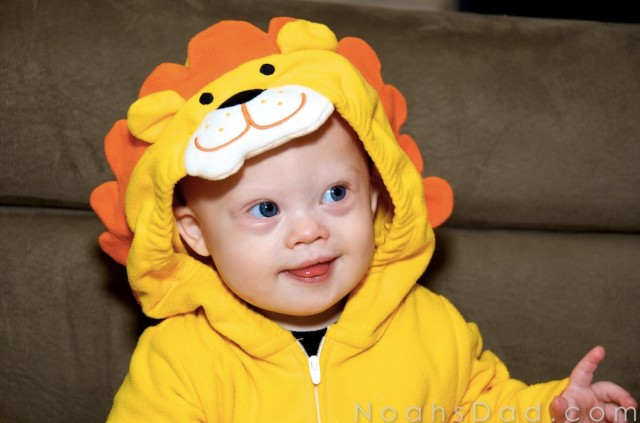 cute down syndrome model baby lion