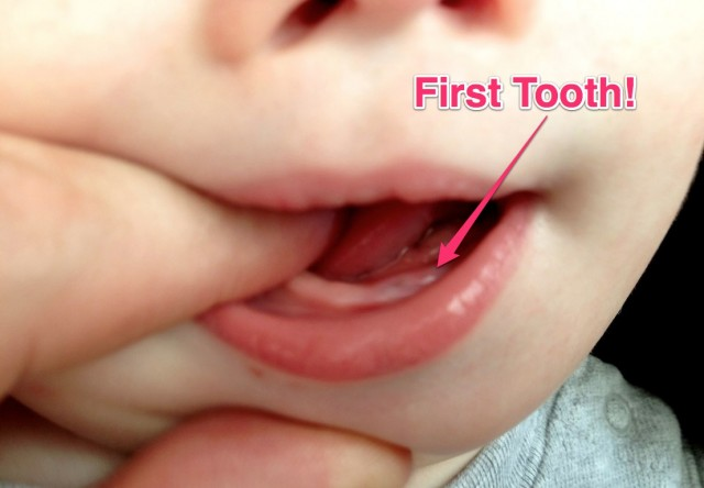 babys first tooth teeth 10 months old down syndrome