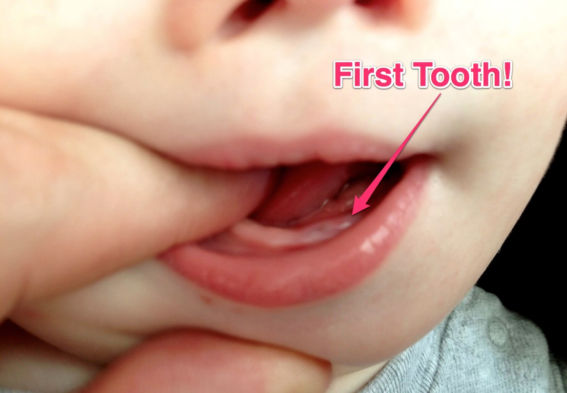 Milestone Alert: Our Baby's First Tooth!