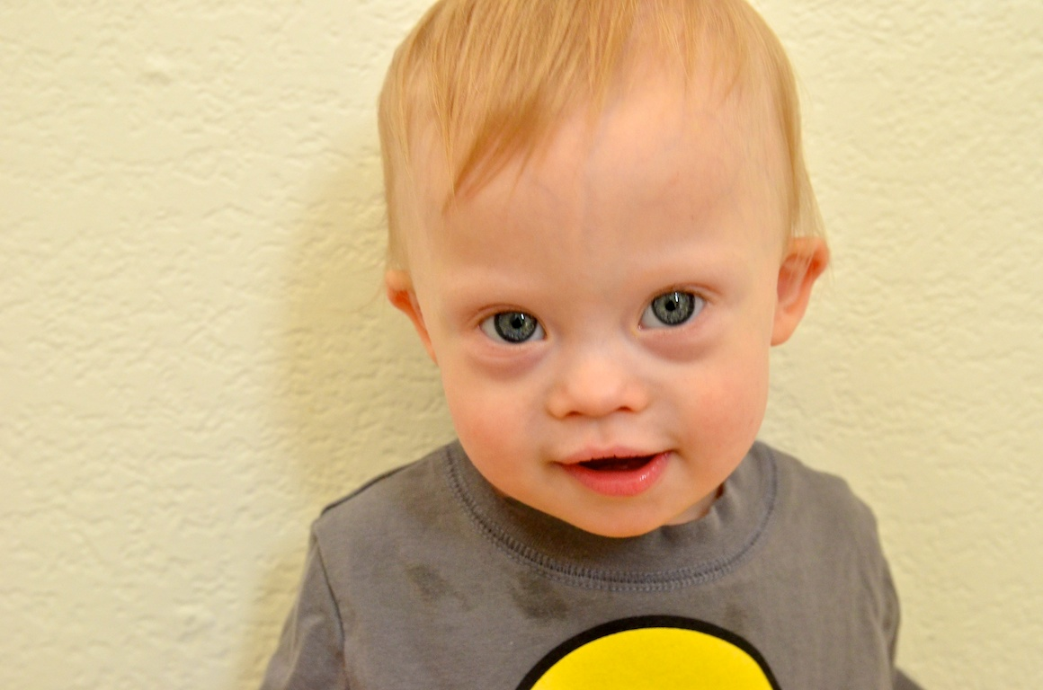 downs syndrome What causes down syndrome down syndrome is caused by a duplication of all or part of chromosome 21,  downs syndrome association visit site.