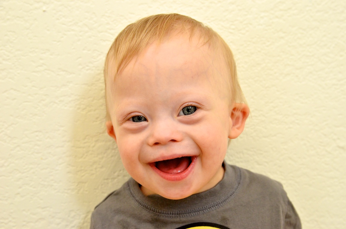 baby-down-syndrome-face-boy-smiling 9