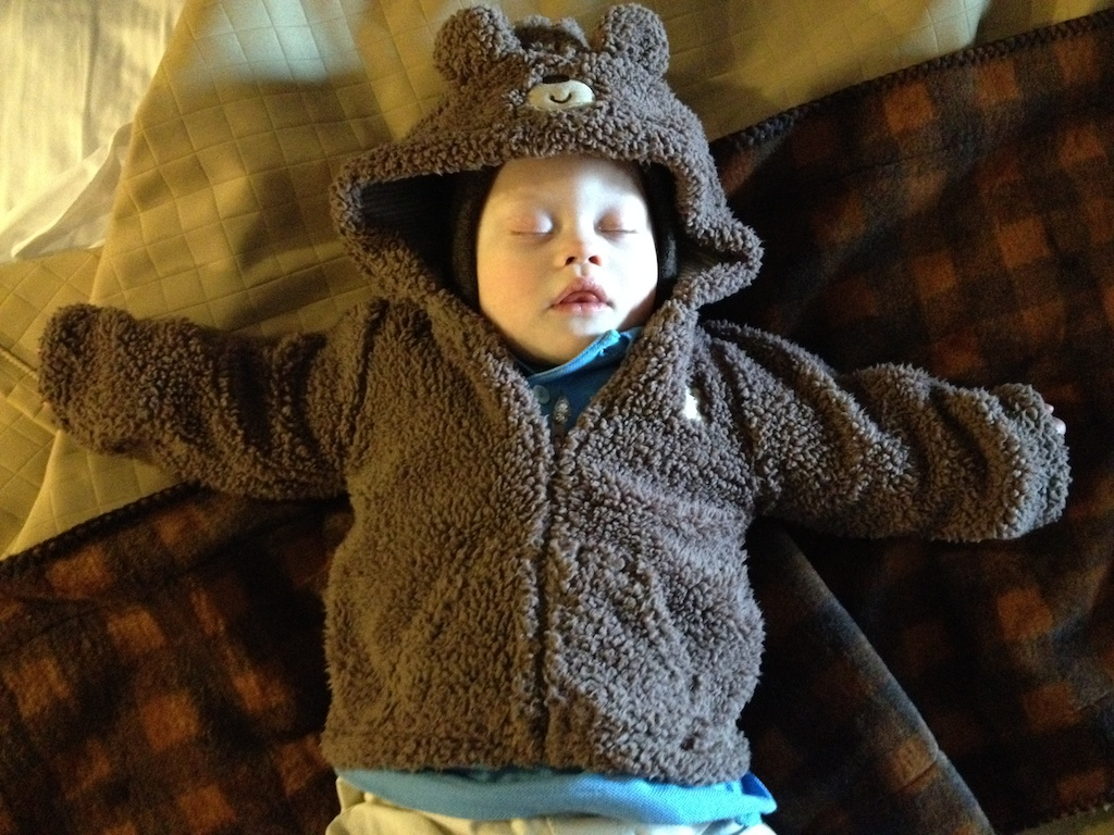 baby-down-syndrome-bear-coat-1-year-old