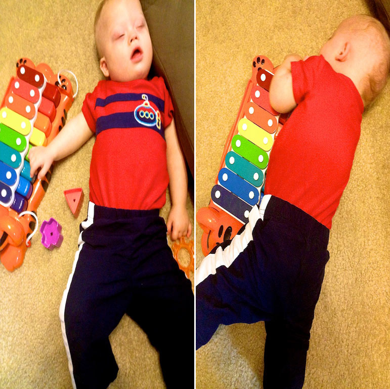 baby down syndrome sleeping resting with toys