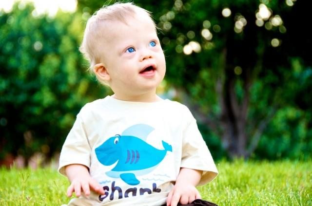 leukemia boy child baby down syndrome
