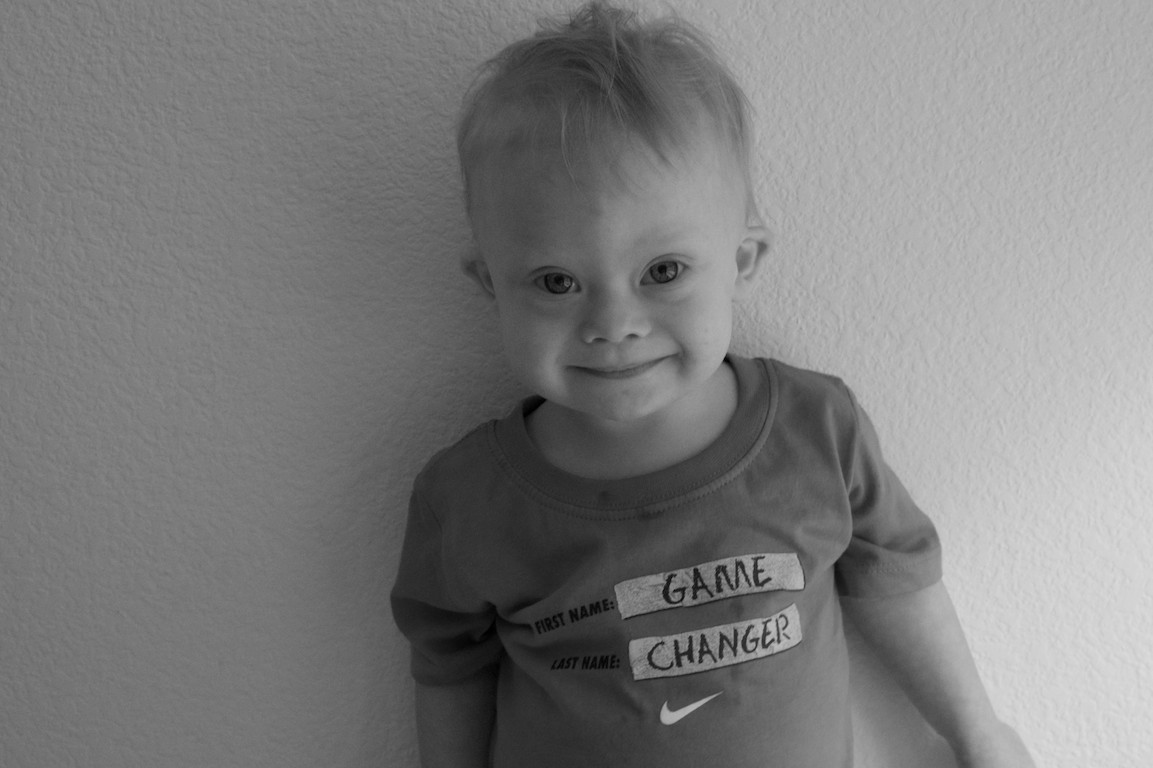 cute smiling boy with down syndrome