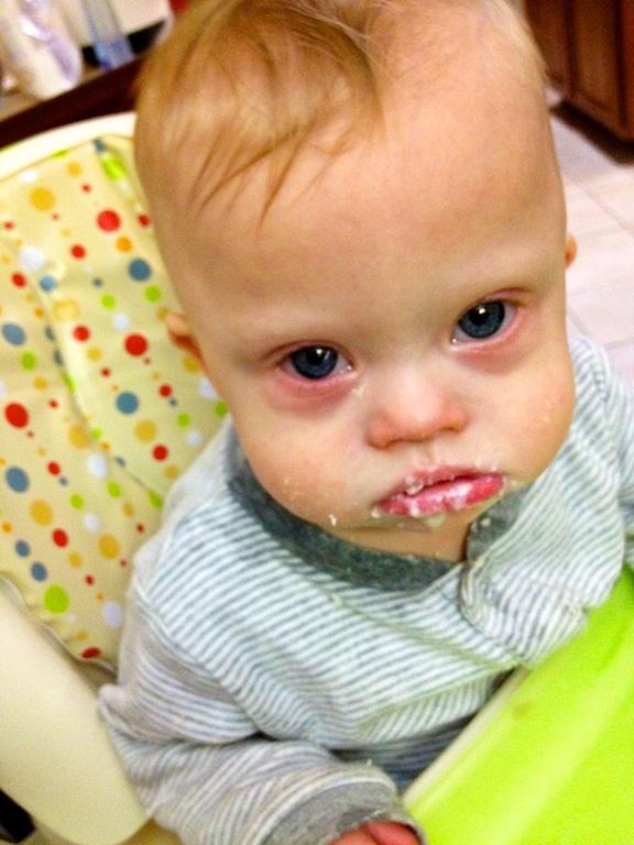 baby virus sad sick first thanksgiving down syndomre