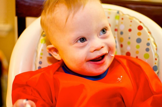 first-birthday-one-year-old-down-syndrome-18