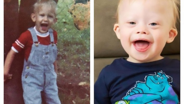 toddler with down syndrome looks like his parents