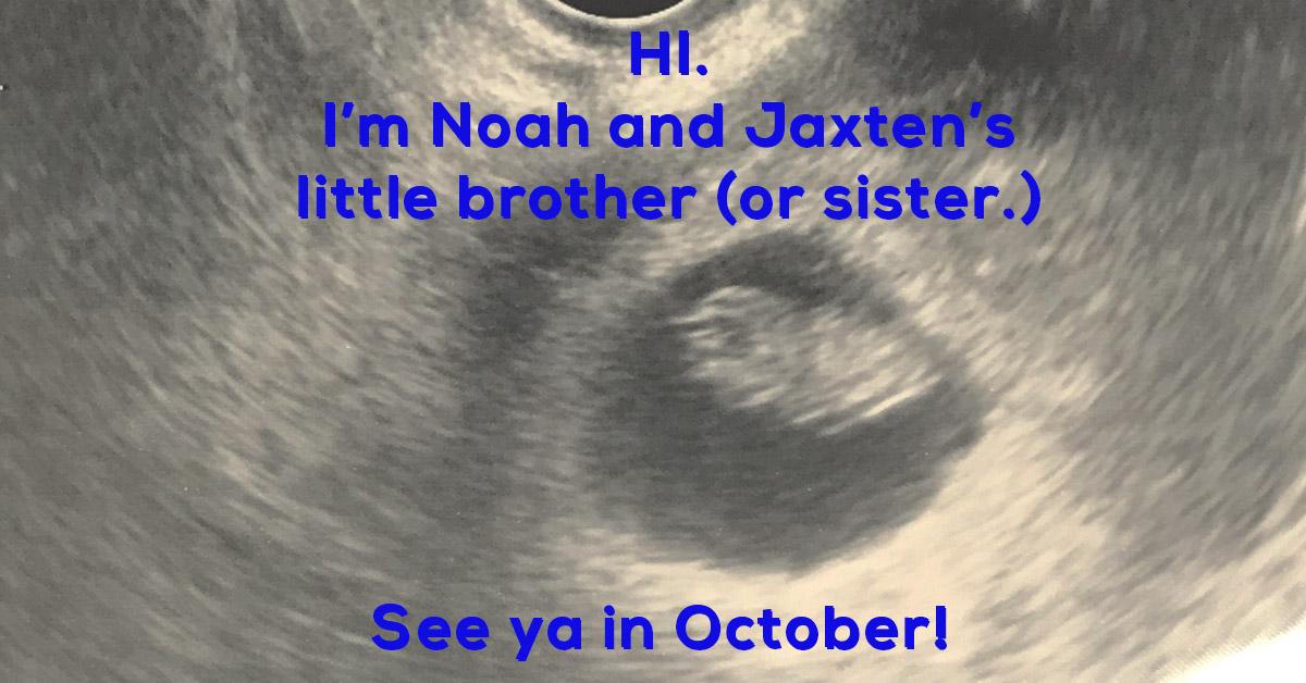 nine week old sonogram