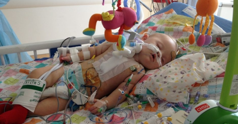 av canal surgery down syndrome baby
