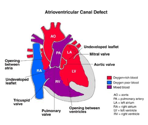 av canal defect down syndrome boy